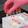 141 ЖЕРТВИ И 42% ПОЛОЖИТЕЛНИ PCR ТЕСТА – КОРОНАВИРУСЪТ В БЪЛГАРИЯ